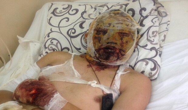 Автомобиль врезался в дерево в Днепропетровске: 2 девушки погибли, 2 парня травмированы - Цензор.НЕТ 4794